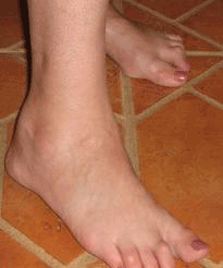 Rheumatoid Arthritis Symptoms Feet