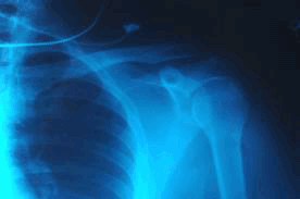Rheumatoid Arthritis Shoulder Pain