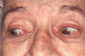 Rheumatoid Arthritis in Eyes