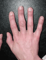 Signs of rheumatoid arthritis in hands